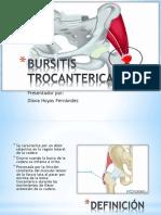 Bursitis Trocanterica