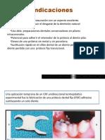 Protesis fija con composite reforzada con fibra de vidrio