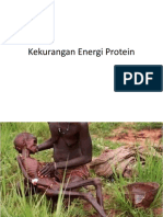 Kekurangan Energi Protein.pptx