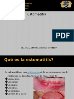 estomatitis