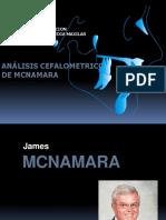 Analisis Cefalometrico de Mcnamara