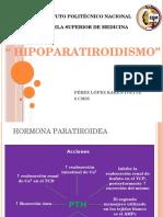 hipoparatiroidismo-131213141148-phpapp02