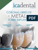 Coronas libres de metal sobre implantes