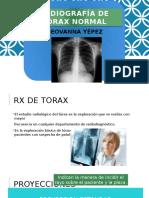 Radiografía de Tórax Normal