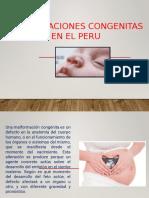 Malformacionescongenitas Peru