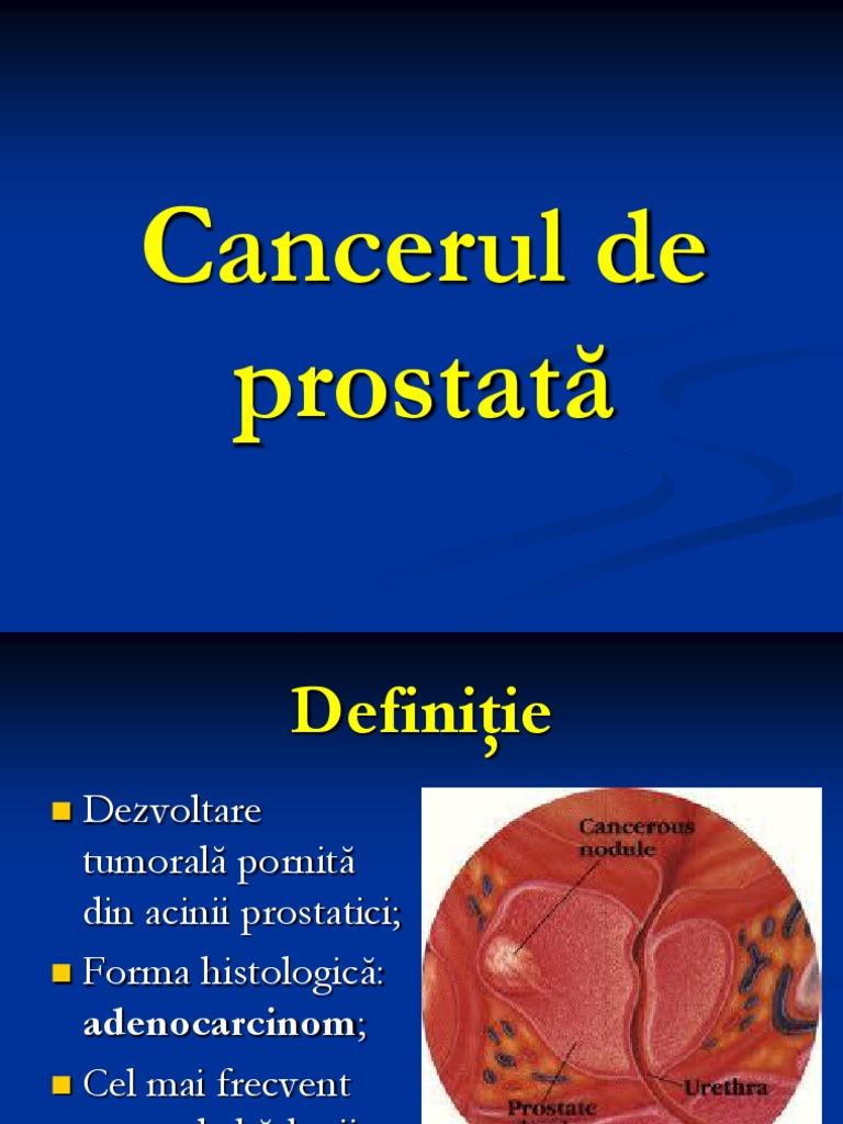 cancerul de prostata definitie