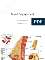 Breast Engorgement