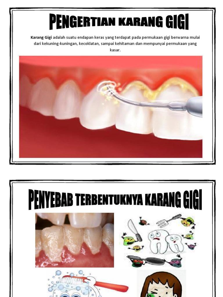 Alat Peraga Karang Gigi