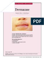 Dermatitis Por Saliva
