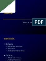 distocia_12