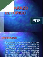 EMBARAZO  ECTOPICO I.ppt