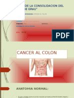Cancer Al Colon Diapositivas
