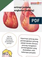Hipertropi jantung