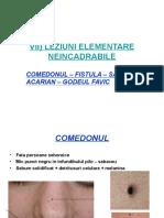 VII) LEZIUNI ELEMENTARE NEINCADRABILE.ppt