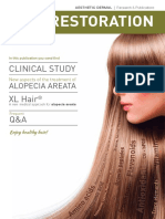 Estudio XL HAIR - Alopecia Areata