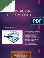 Incrustaciones de Composite