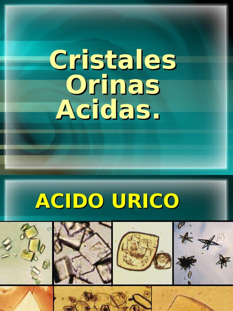 Cristales en orinas acidas