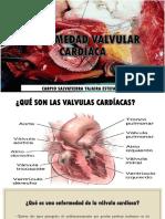 Enfermedad Valvular Cardíaca