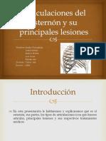 Articulaciones Del Esternón y Su Principales Lesiones