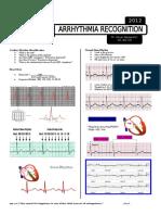2.2 Arrhythmia Dr. Payawal