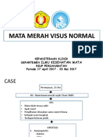 Mata Merah Visus Normal