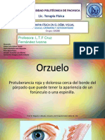 Orzuelo Cataratas Astigmatismo (1)