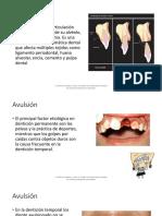 Avulsion dental