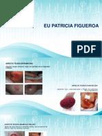Valoracion de Una úlcera