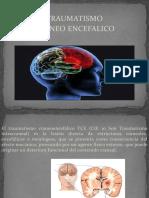 traumatismo  Alcazar Dominguez