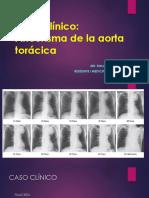 Caso Aneurisma de Aorta Toracica