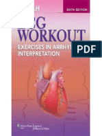 Huff - ECG Workout - Exercises in Arrhythmia Interpretation