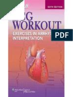 Huff - ECG Workout - Exercises in Arrhythmia Interpretation