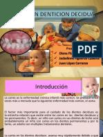 Caries en Denticion Decidua