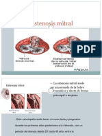 estenosismitral-120925182633-phpapp02