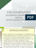 valvulopatias-12-130422170608-phpapp01