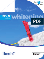 How to Guide Whitening