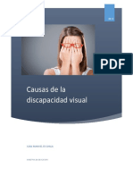 Causas de La Discapacidad Visual1