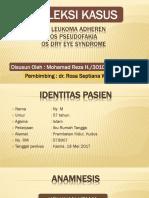 Refkas  Pseudofakia+DES+Decompensated Cornea+Leukoma(1)