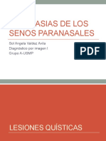 Neoplasias de Los Senos Paranasales