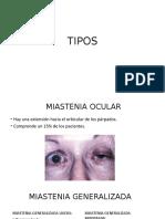 TIPOS MIASTENIA