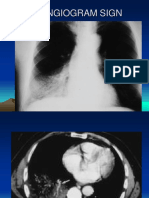Radiology signs