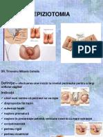 Epiziotomia