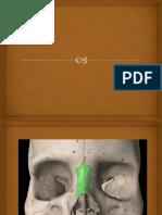 Huesos Nasales Hueso Lagrimal
