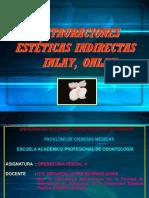 2º-RESTAURACIONES-INDIRECTAS-TIPO-INLAYONLAY-1.ppt
