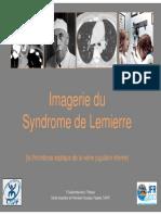 syndrome de Lemierre.pdf