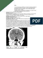 CASO N_ 13 Neurocisticercosis.