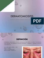 DermatomioitIs