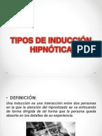 Tipos de Inducción Hipnótica