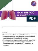 Exacerbación de Asma