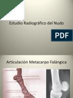 2.- RX Nudo.pdf Equino